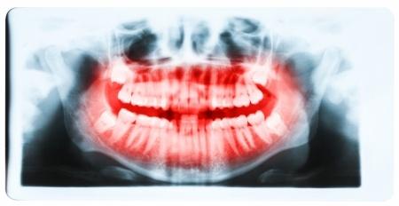 השתלת שיניים ביום אחד בשיטת אול און פור